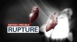 video_rupture