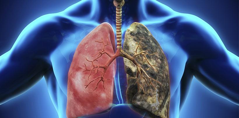 Un nouveau filtre de cigarette pour colorer vos poumons avec ...